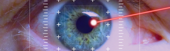 Brief Overview of LASIK for Astigmatism and Myopia